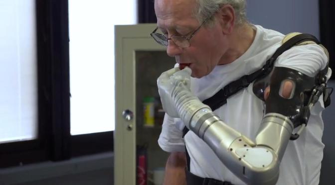 Desarrollan brazo protésico motorizado con tacto y que se mueve con el pensamiento