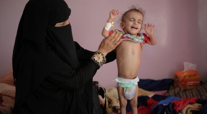 Mientras EE.UU. sanciona a un Yemen hambriento, Irán pide a la Interpol que arreste a Trump
